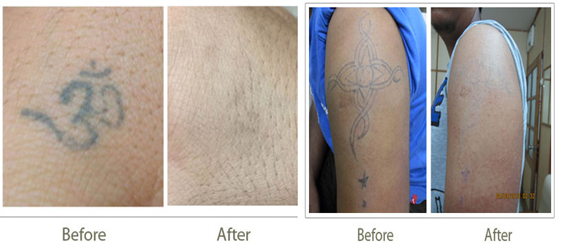 100 laser tattoo removal safe effective laser for Laser tattoo removal manhattan